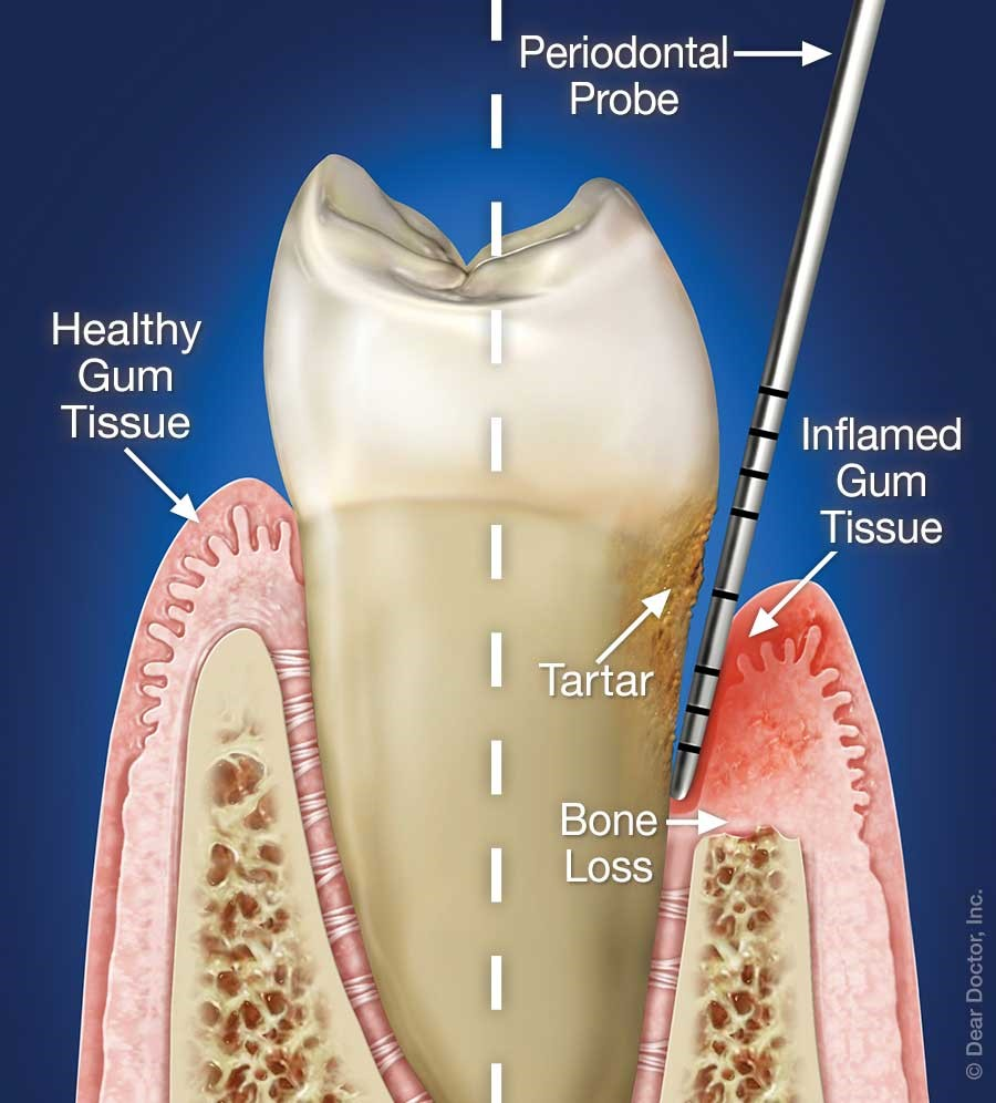 periodontal probe in gums