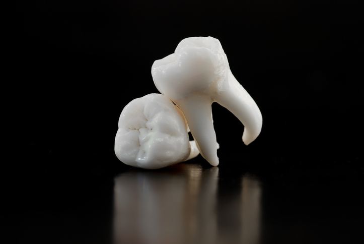An image of teeth after extraction in Phoenix Arizona