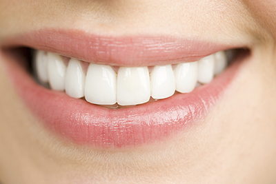 Close up of woman smiling iStock 000029740356 Large width of 400 pixels