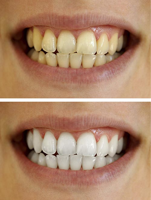 A patients smile before, and after a tooth whitening treatment.
